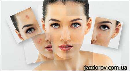 Догляд за жирною шкірою обличчя в домашніх умовах