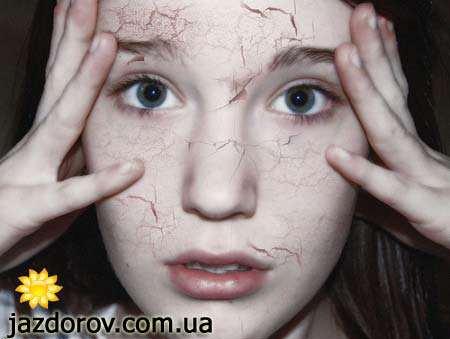 Суха шкіра обличчя