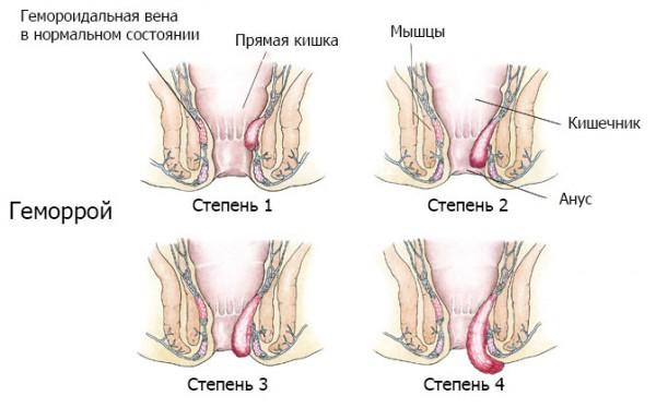 shishka-na-analnom-koltse