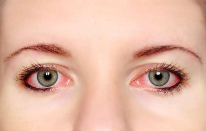 В очах лопаються судини: чи є причини для паніки