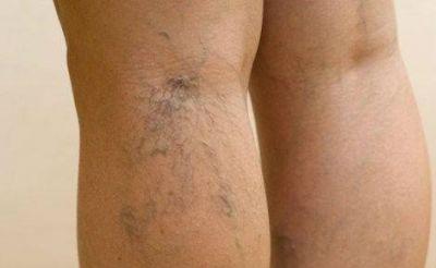 Венозная сетка на ногах у беременных 28