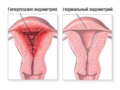 Секс пдчас кретичних днв