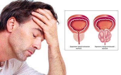 Как лечить аденома простаты у мужчин симптомы